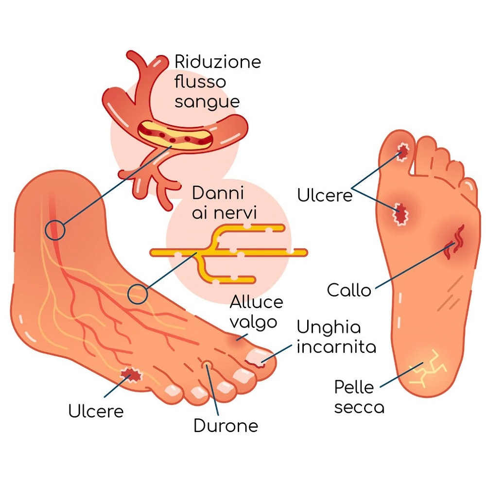 Piede-diabetico arteriopatia e neuropatia